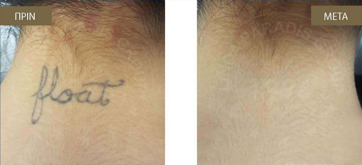 ραντεβού τατουάζ το προξενιό της νίκης στην παραλία